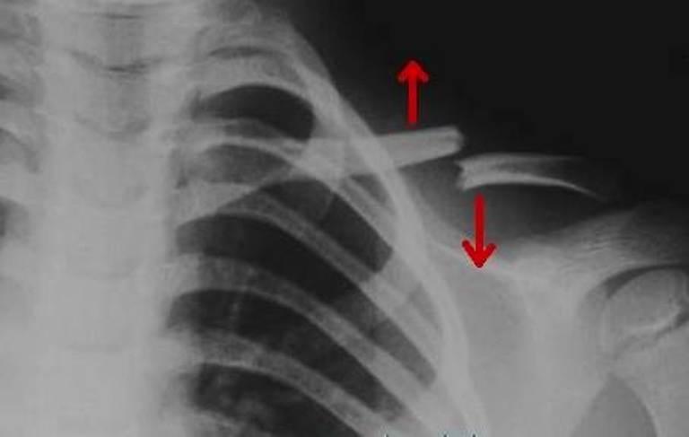 Рентгенография. Перелом ключицы