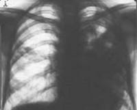 Бактериальная деструкция легких