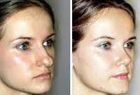 Процедура Пластика кончика носа