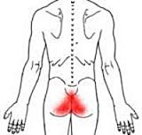 Анокопчиковый болевой синдром (Кокцигодиния)