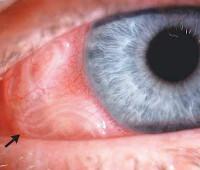 Дирофиляриоз глаз